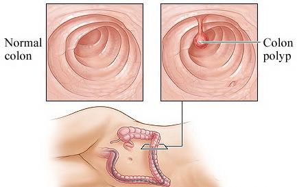 Опухоли и полипы толстой кишки