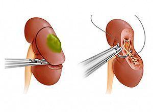 Лапароскопическая нефрэктомия и резекция почки при раке - цена операции.