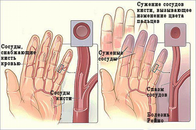 Хирургическое лечение болезни Рейно