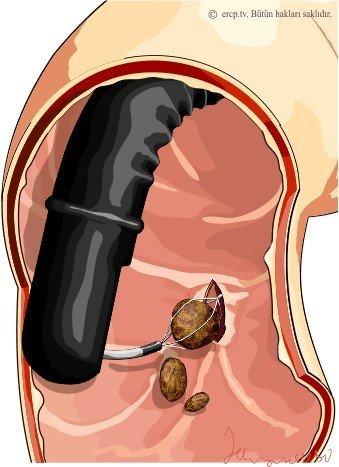 Минилапароскопическая холецистэктомия через 3-х мм проколы
