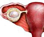 Кисты яичников - симптомы, признаки и методы лечения