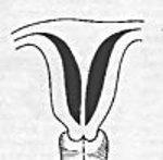внутриматочная перегородка