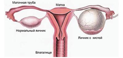 Киста яичника, опухоль яичников.