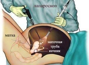 Пресакральные кисты и опухоли