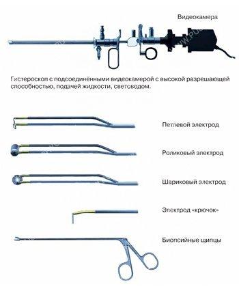 Гистероскопическая миомэктомия в лечении миомы матки