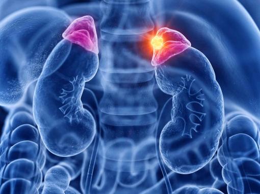 Методы лечения опухолей надпочечников
