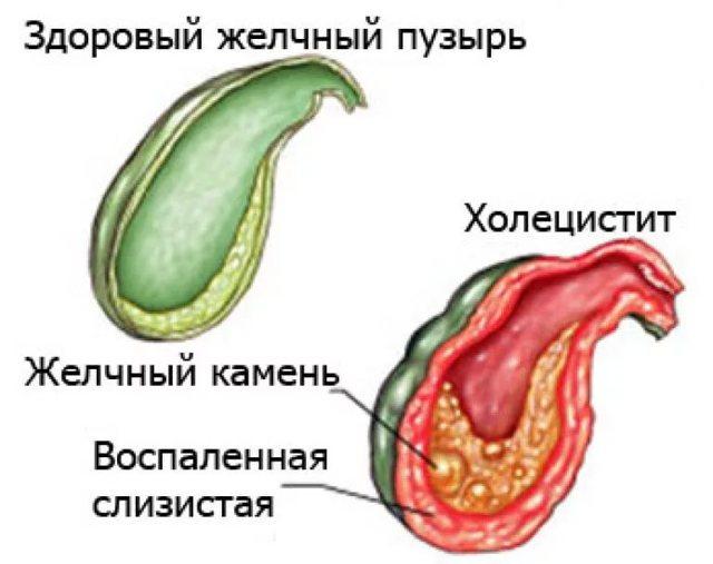Хронический калькулезный холецистит