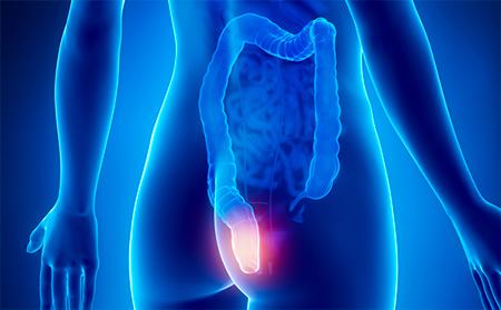Уникальные методы лечения рака прямой кишки - операции профессора