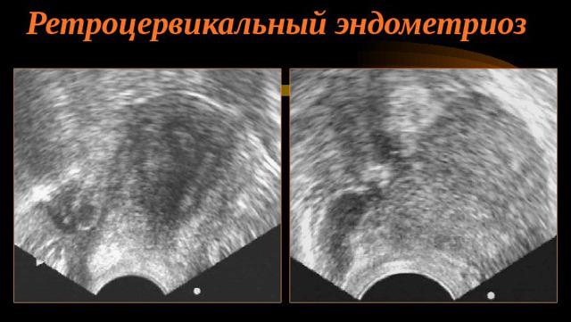 Ретроцервикальный эндометриоз