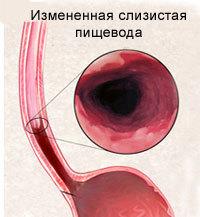 Радиочастотная абляция (РЧА) при пищеводе Барретта