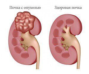 Доброкачественные и злокачественные опухоли почек