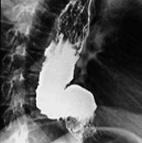 Мастер-классы по лечению ахалазии кардии