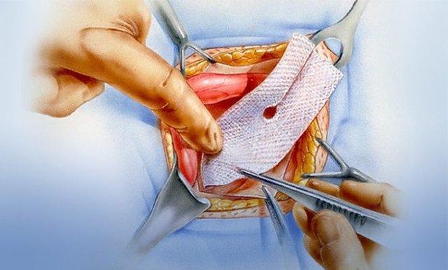 Хирургическое лечение послеоперационных грыж с применением сетчатых имплантов