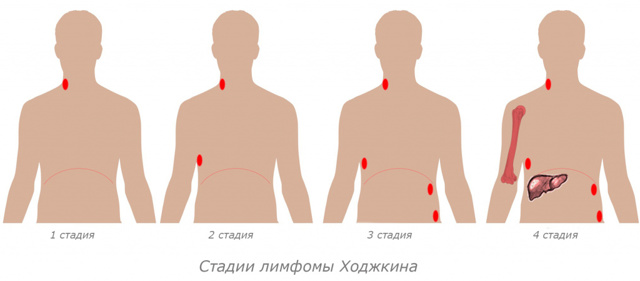 Опухоли селезенки - классификация, причины, диагностика, симптомы, методы лечения - обзор
