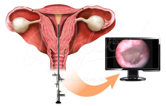 Гистероскопическое лечение внутриматочной перегородки - материал