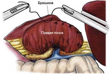Методика лапароскопической нефропексии сетчатым имплантом