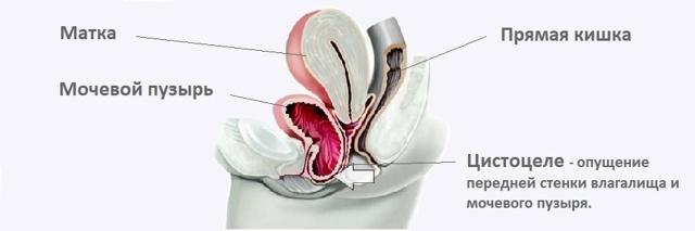 Цистоцеле у женщин - степени, причины, симптомы и лечение.