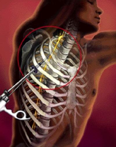 Хирургическое лечение повышенного потоотделения (гипергидроза)