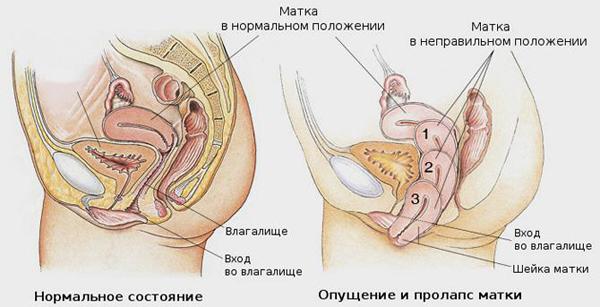 Операция при пролапсе матки (опущении/выпадении матки)