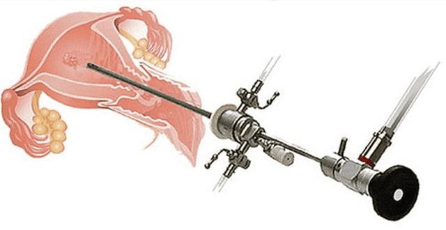 Лечение полипов эндометрия без скальпеля