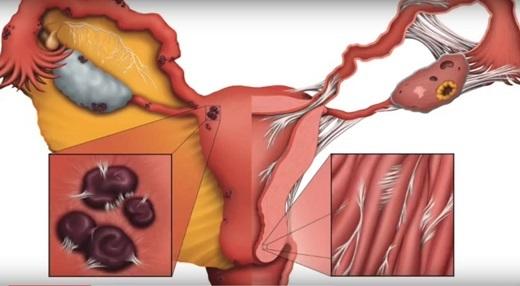 Лечение аденомиоза (внутреннего эндометриоза) матки без скальпеля