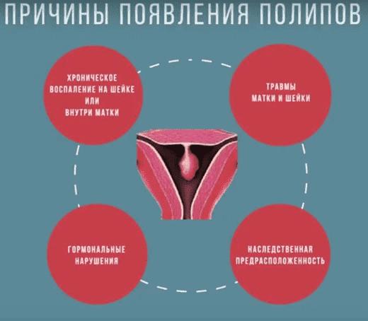 Полипы и болезни эндометрия - симптомы, причины, диагностика