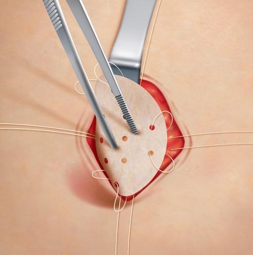 Послеоперационная вентральная грыжа - операция, осложнения, лечение, удаление.