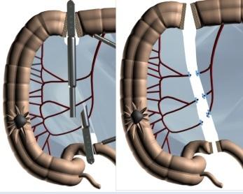 Операция при раке сигмовидной кишки - удаление, лапароскопия.