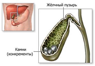 Мастер-классы ЖКБ по хирургическому лечению Пучков К.В.