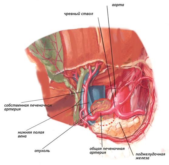 Опухоль забрюшинного пространства - симптомы, диагностика, лечение, удаление, операция