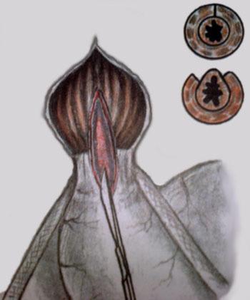 Инструменты для лапароскопической кардиомиотомии при ахалазии кардии (информация для специалистов)