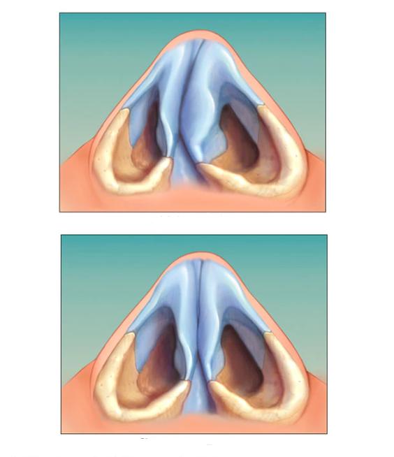 Отзывы пациентов прооперированных с внутриматочными перегородками