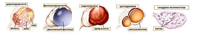Лечение кисты яичников. Органосохраняющая лапароскопическая операция