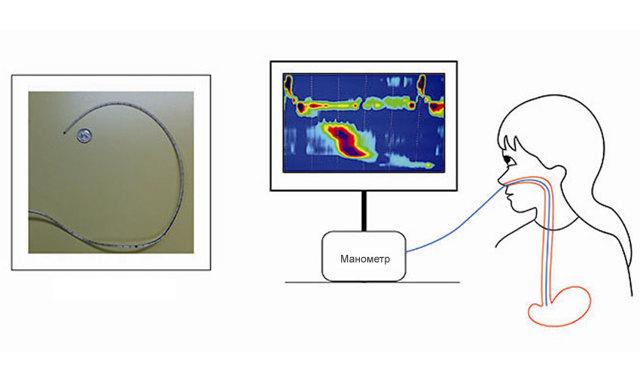 Лапароскопическая фундопликация по Ниссену - осложнения, ход операции, прогноз.