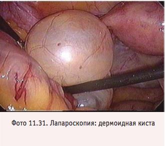 Операции при кисте яичника - лапароскопия