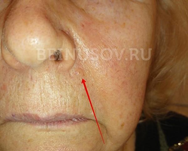 Новообразования кожи - меланома и базалиома, методы лечения, причины, проявления и диагностика
