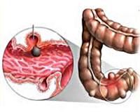 Отзывы пациентов прооперированных проф. Пучковым с дивертикулезом толстой кишки