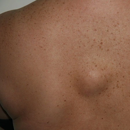 Лечение новообразований кожи