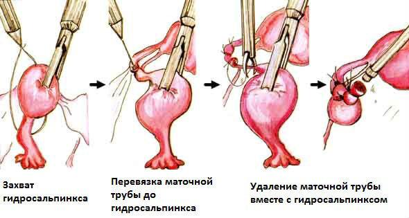 Лечение заболеваний маточных труб (гидросальпинкса и сальпингита) без скальпеля