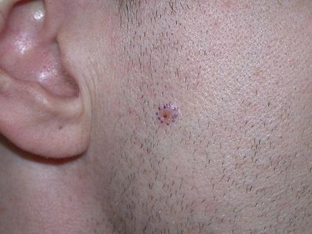Виды онкологических заболеваний кожи - меланома, базалиома, лечение ФТД