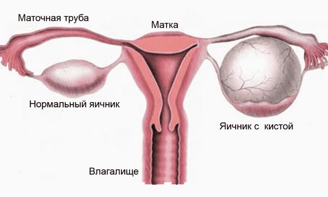 Опухоль яичников