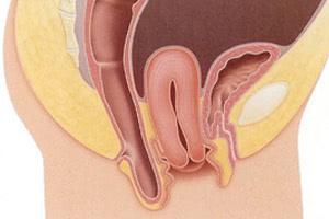 Генитальный пролапс (опущение) матки или влагалища -причины, диагностика и методы лечения