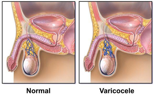 Методы лечения варикоцеле - уникальная лапароскопическая операция