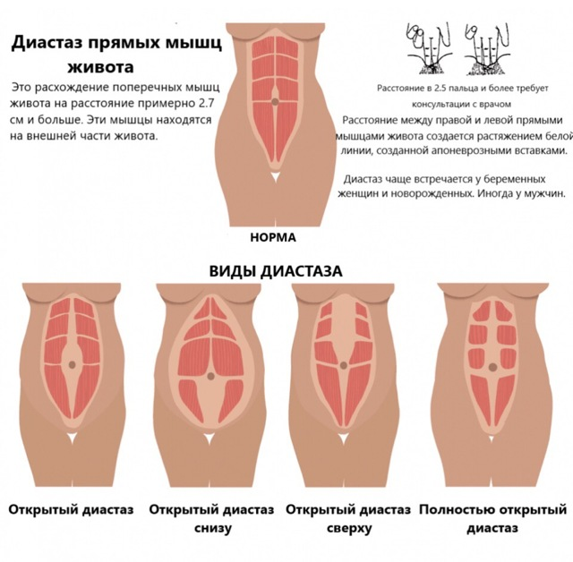 Диастаз прямых мышц живота - методы коррекции