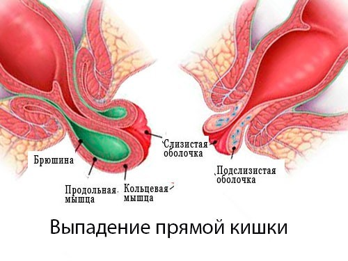 Выпадение прямой кишки - ректальный пролапс - причины, профилактика, диагностика, симптомы и методы борьбы