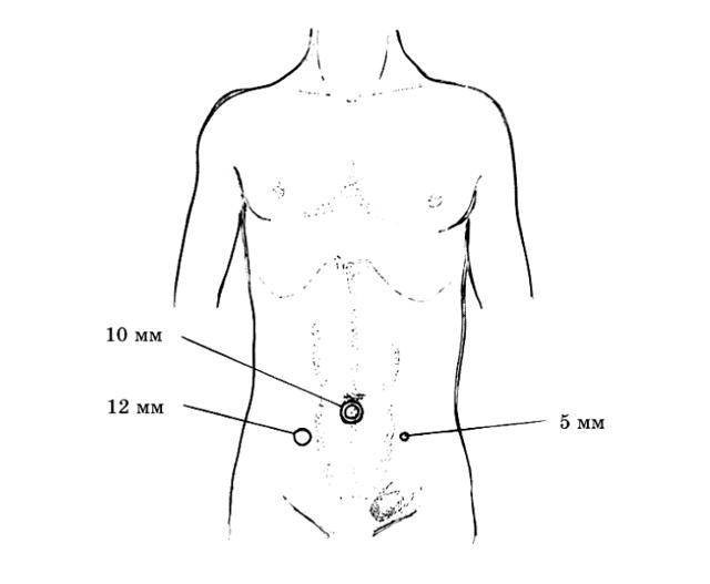 Инструменты для лапароскопической герниопластики паховой грыжи