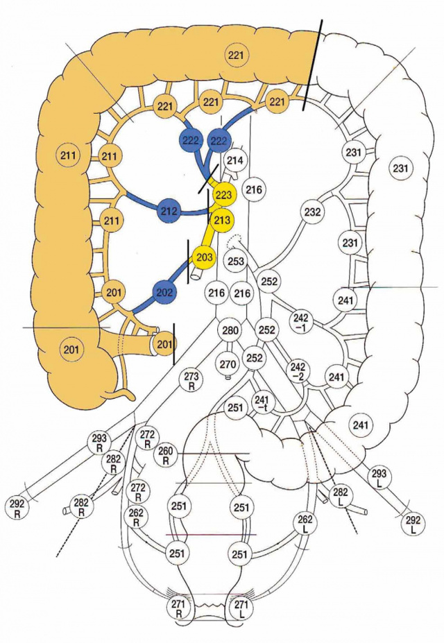 Хирургическое лечение околопрямокишечных тератоидных новообразований (пресакральных кист). Лапароскопический доступ.
