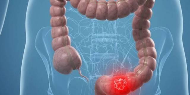 Рак сигмовидной кишки - симптомы, стадии, лечение и прогноз.