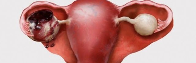 Дермоидная киста яичников (тератома) - лапароскопия, удаление, лечение кист яичника, операция. Как лечить дермоидную кисту яичника?