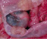 Серозная и муцинозная цистаденома яичника - лапароскопия, удаление, лечение кист яичника, операция. Как лечить цистаденому яичника?